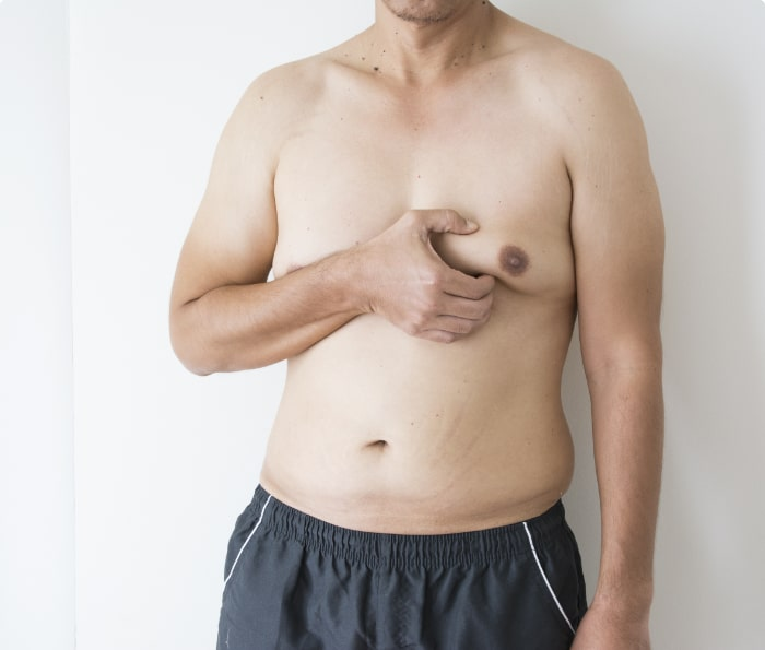 VASER Male breast reduction