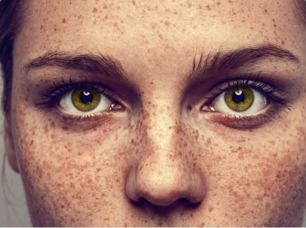 How to get rid of freckles in Harpenden & St. Albans