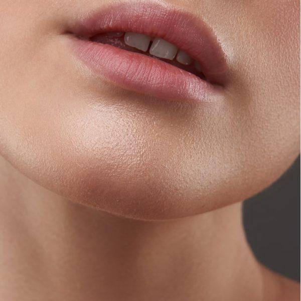 Lip Fillers